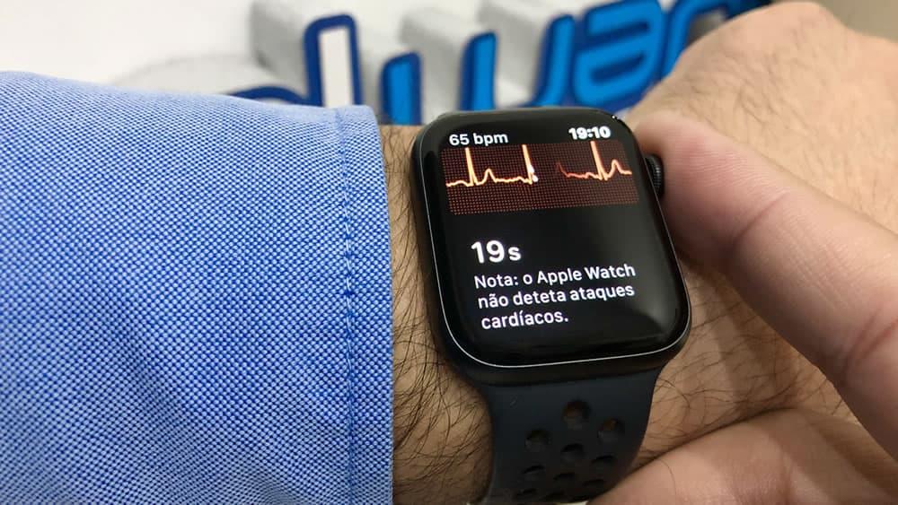 Imagem Apple Watch com deteção de fibrilhação auricular